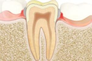 Symptômes de la gingivite
