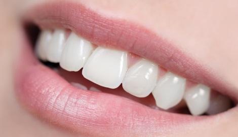 comment faire pour avoir des dents plus blanches listerine. Black Bedroom Furniture Sets. Home Design Ideas