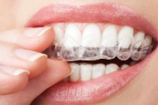 Gele tanden behandelen om wittere tanden te krijgen